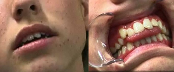 dental_hikaku